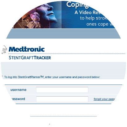 Project: Medtronic StentGraft Tracker